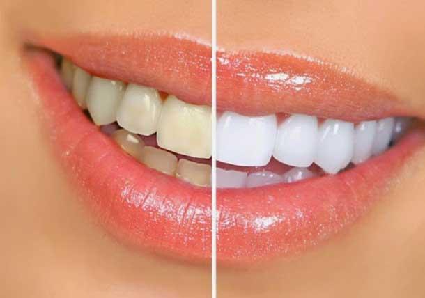 receitas_clarear_dentes
