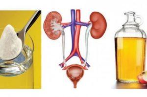 Como-eliminar-uma-infecção-urinária-com-bicarbonato-de-sódio-e-vinagre-de-maçã-430x285