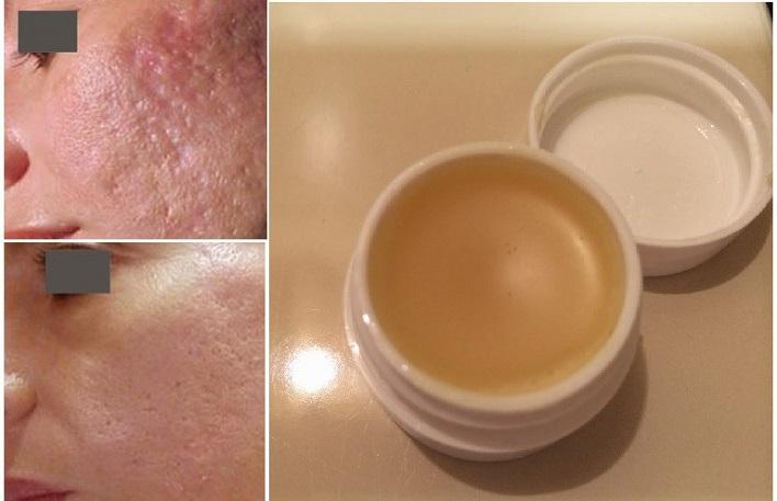 cicatriz-tratamento