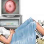 Presta atenção aos sintomas destes 5 tipos de cancro ginecológico! É importante!