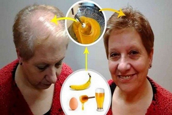 Recipe-To-Grow-Your-Hair-Leave-All-Doctors-With-Open-Mouth