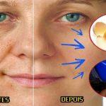 Esta milagrosa máscara caseira elimina as manchas do rosto e da pele de forma eficaz!