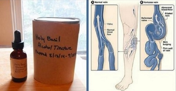 remedio-natural-para-aliviar-dor-nas-pernas-e-varizes