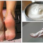 Elimina os fungos e os calos dos pés com este incrível remédio caseiro!